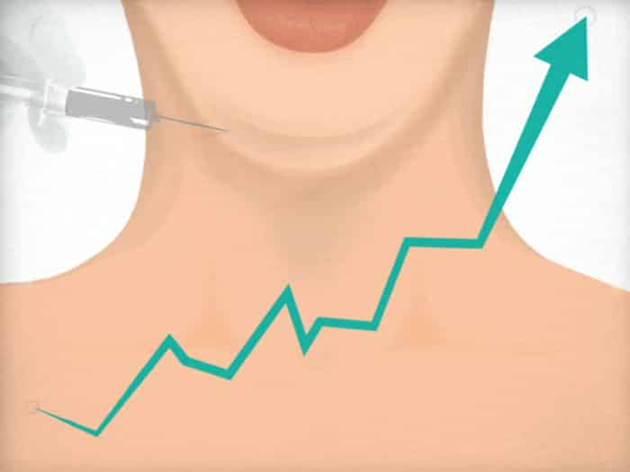 Will Kybella Live Up to the Hype?