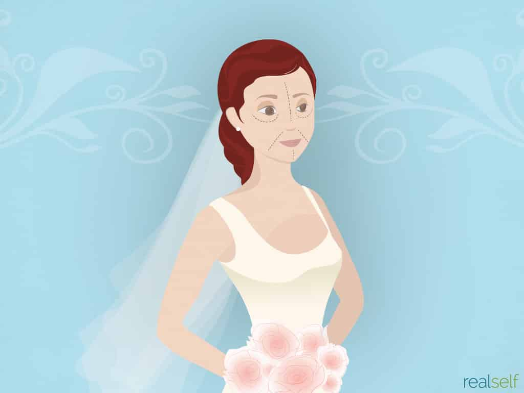 Do Women Spend More Time Researching Their Wedding or Plastic Surgery?
