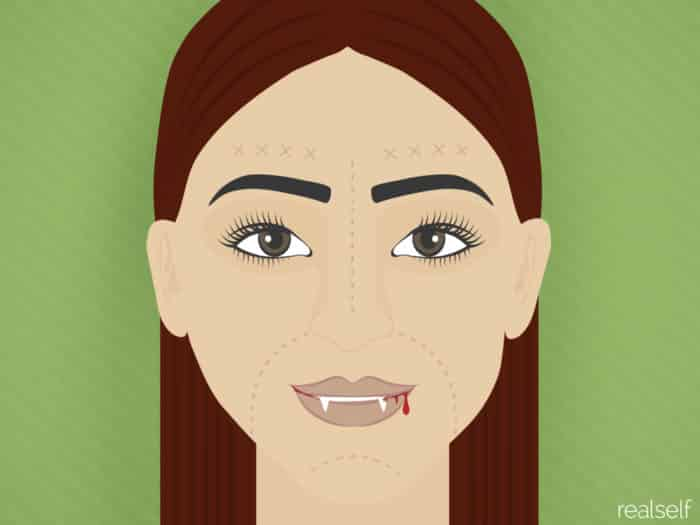 Is Your Own Blood the Secret to Great Skin? Doctors Discuss the Vampire Facial
