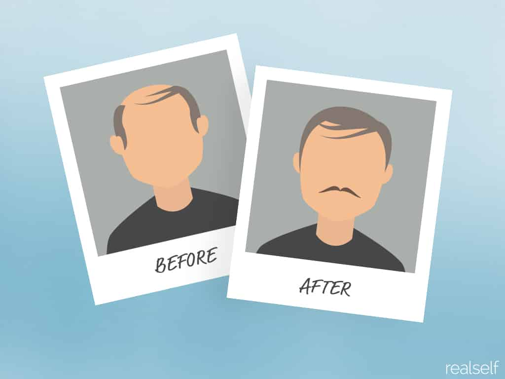 Before & After Photos: More Is Better, Say Plastic Surgery Patients