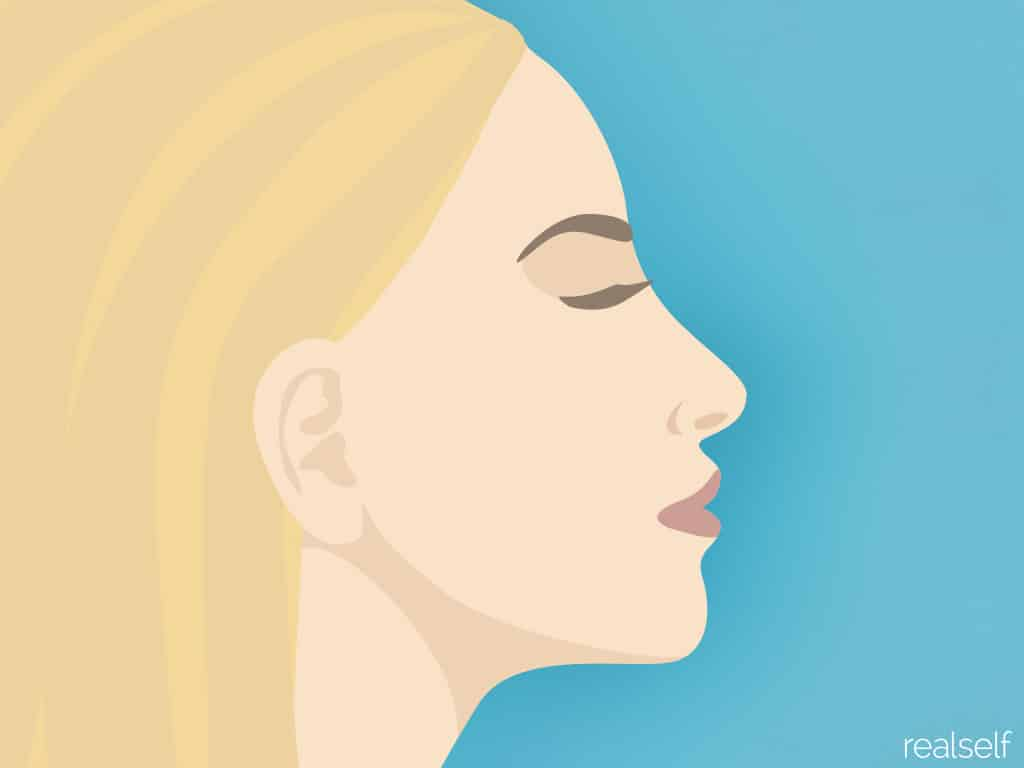 Nose Jobs Without Surgery: It's Possible and Popular