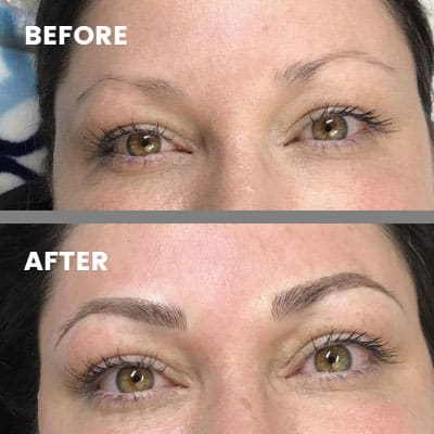 Eyebrows before and after microblading