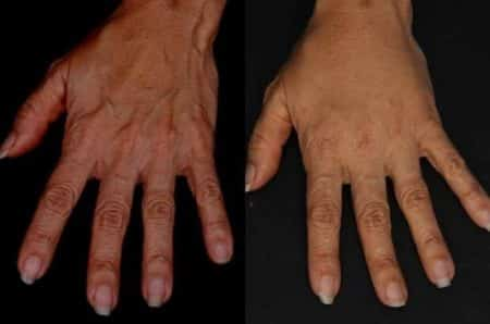 Hands before and after treatment